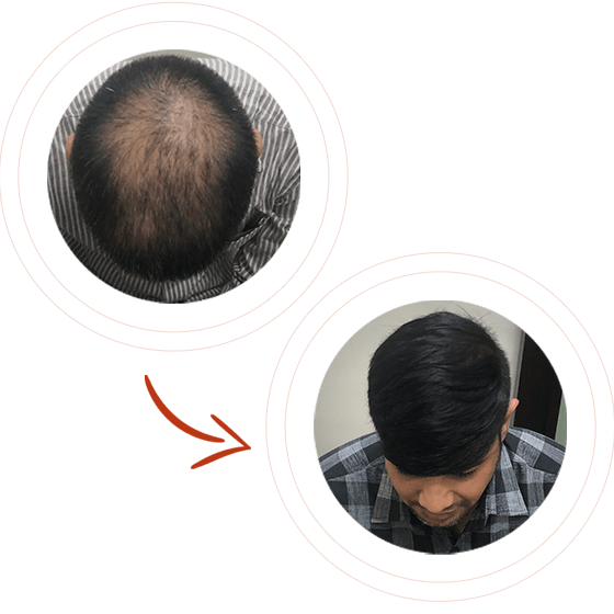 fue hair tranplant before after