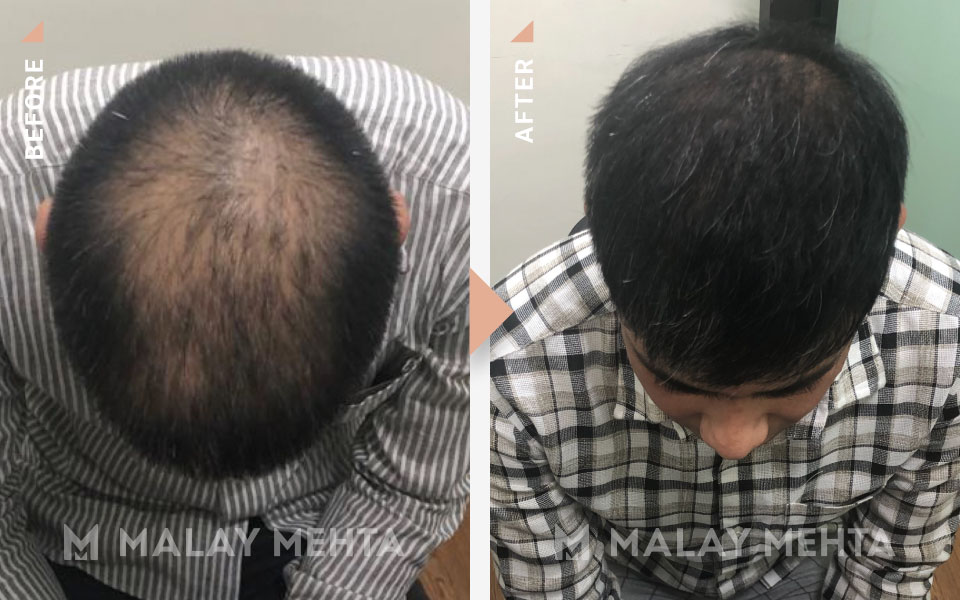 fue transplant before after