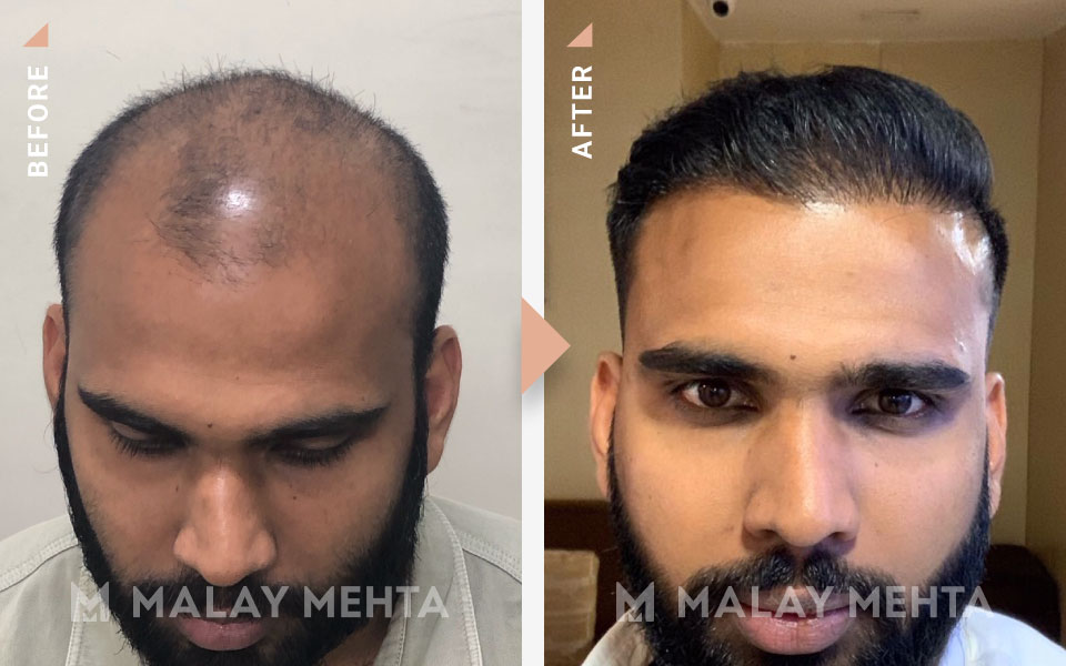 hairline reconstruction before after