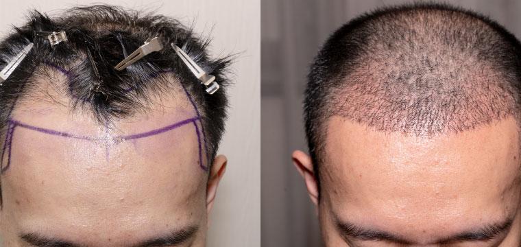 5 Benefits of Hair Transplant Treatment