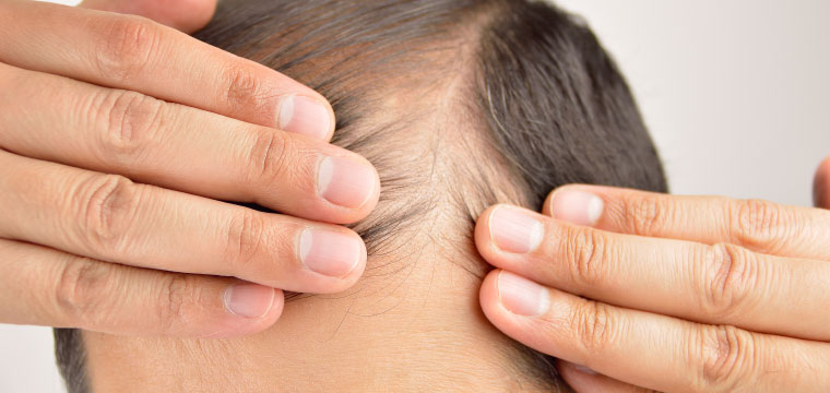 How Can Stop the Hair Loss During This Pandemic Situation